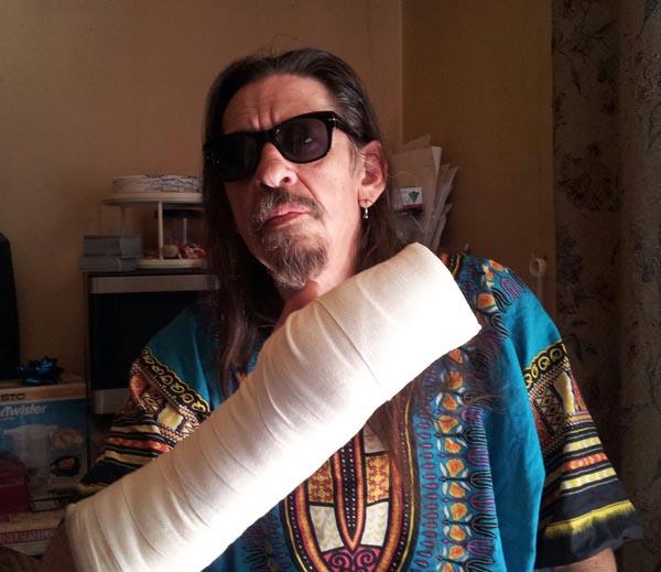 broken_hand
